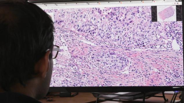 Philips и PathAI работают над созданием приложений для глубокого обучения поиску патологий